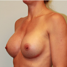 Breast Implants after 2073416