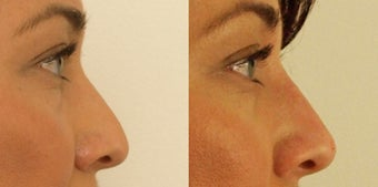 Female Non-surgical rhinoplasty before 1181361