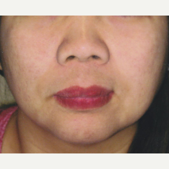 45 year old woman treated with Pico Laser for Pigmentation after 3056275