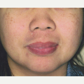 45 year old woman treated with Pico Laser for Pigmentation before 3056275