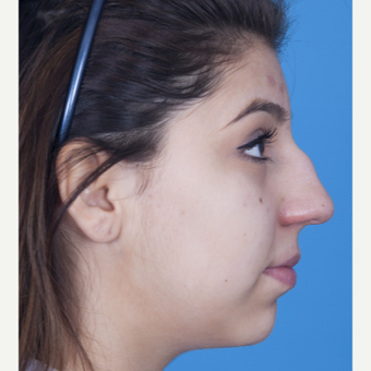 17 or under year old woman treated with Rhinoplasty before 3115269