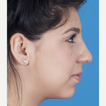 17 or under year old woman treated with Rhinoplasty after 3115269