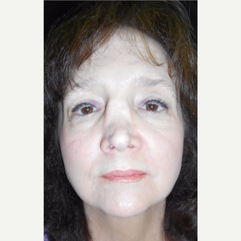 55-64 year old female with Revision Rhinoplasty before 3187217