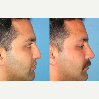 25-34 year old man treated with Rhinoplasty after 3521768