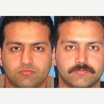 25-34 year old man treated with Rhinoplasty before 3521768