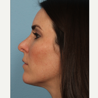 35-44 year old woman treated with Rhinoplasty after 3564969