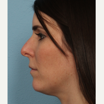 35-44 year old woman treated with Rhinoplasty before 3564969