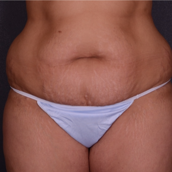 35-44 year old woman treated with Tummy Tuck before 3738179