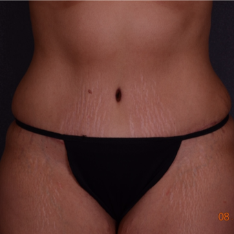 35-44 year old woman treated with Tummy Tuck after 3738179