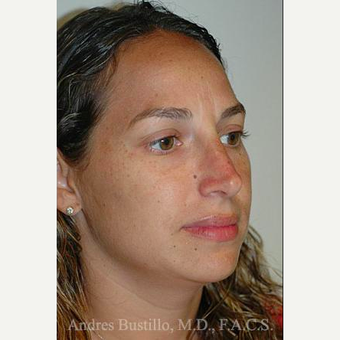 35 year old woman treated with Rhinoplasty after 3461039