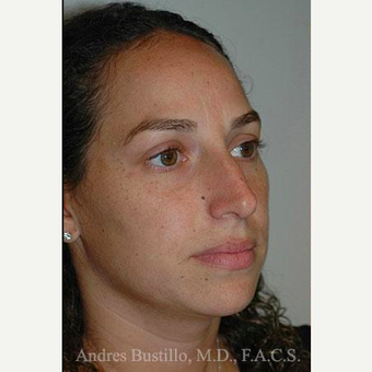 35 year old woman treated with Rhinoplasty before 3461039