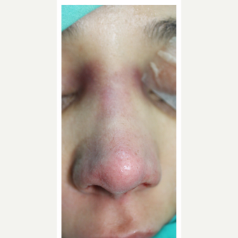 25-34 year old woman treated with Rhinoplasty after 3390041