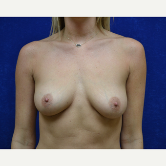 25-34 year old woman treated with Breast Augmentation before 3664409