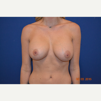 25-34 year old woman treated with Breast Augmentation after 3664409
