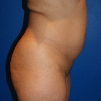 25-34 year old woman treated with Brazilian Butt Lift, fat grafting and liposuction before 3125838