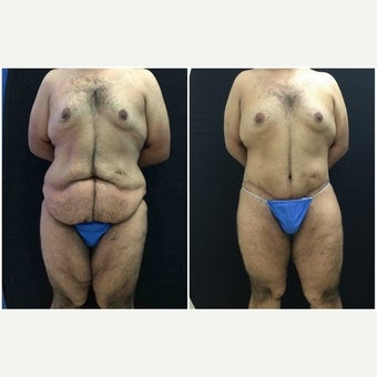 25-34 year old man treated with Body Lift before 1942500