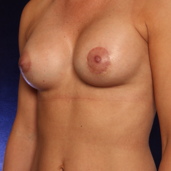 25-34 year old woman treated with Breast Augmentation after 3444459