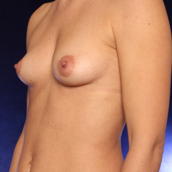 25-34 year old woman treated with Breast Augmentation before 3444459