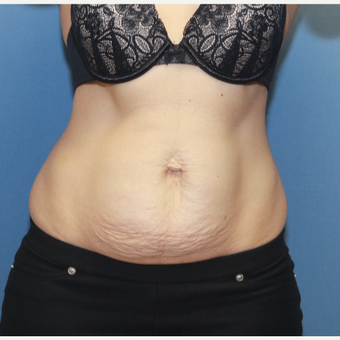35-44 year old woman treated with Tummy Tuck before 3524573