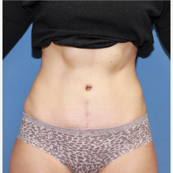 35-44 year old woman treated with Tummy Tuck after 3524573