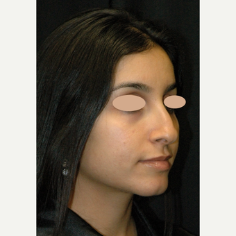 25-34 year old woman treated with Rhinoplasty before 3783145