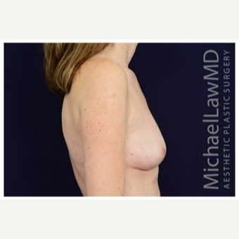 25-34 year old woman treated with Breast Implants after 3383495