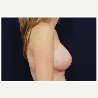25-34 year old woman treated with Breast Implants before 3383495