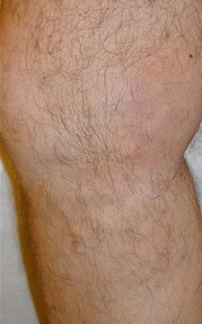 Varicose Vein Treatment Legs after 914971