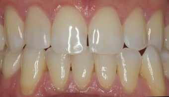 EMAX crown and extreme whitening treatment. after 349670