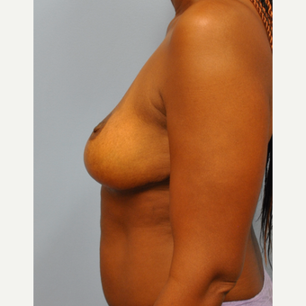 44 year old woman who had a breast reduction.  500g, from H cup to C cup. after 3304129