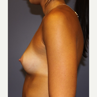 18-24 year old woman treated with Sientra Breast Implants before 3043679