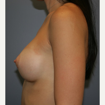 18-24 year old woman treated with Sientra Breast Implants after 3043679