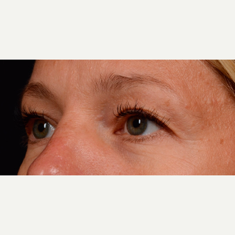 35-44 year old woman treated with Eyelid Surgery before 3776241