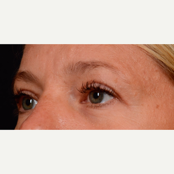 35-44 year old woman treated with Eyelid Surgery after 3776241