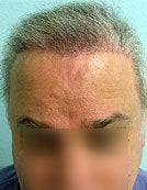 FUE – BHT Using Beard and Body Hair Only 2,000 graft repair using Stomach, Arm, and Leg donor hair after 196033