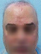 FUE – BHT Using Beard and Body Hair Only 2,000 graft repair using Stomach, Arm, and Leg donor hair before 196033
