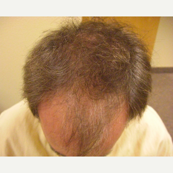 45-54 year old man treated with Hair Transplant FUT before 3664041