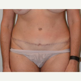 45-54 year old woman treated with Tummy Tuck after 3440974