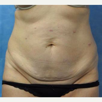 45-54 year old woman treated with Tummy Tuck before 3440974