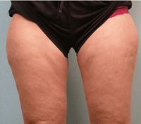 35-44 year old woman treated with CoolSculpting 1748617