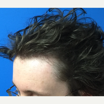 25-34 year old man treated with Hair Transplant after 3453520
