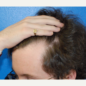 25-34 year old man treated with Hair Transplant before 3453520