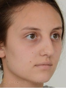 18-24 year old woman treated with Rhinoplasty before 3258629