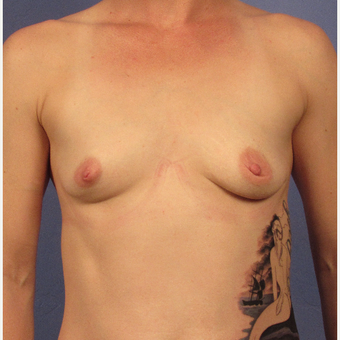25-34 year old woman treated with Breast Augmentation before 3321901