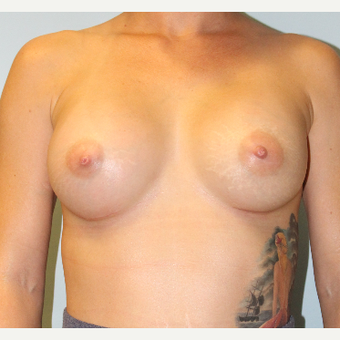 25-34 year old woman treated with Breast Augmentation after 3321901