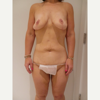 25-34 year old woman treated with Mommy Makeover before 3711642