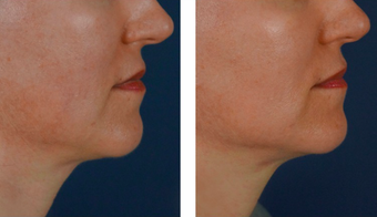 25-34 year old woman treated with Cheek Augmentation
