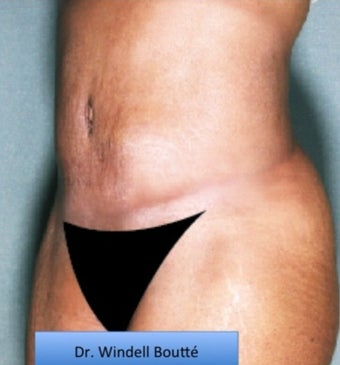 35-44 year old woman treated with Smart Lipo after 1651711