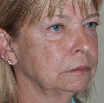 63 Year-Old Female Treated For Facial Wrinkles and Pigmentation Issues before 937544