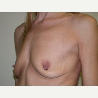35-44 year old woman treated with Breast Augmentation before 2494323
